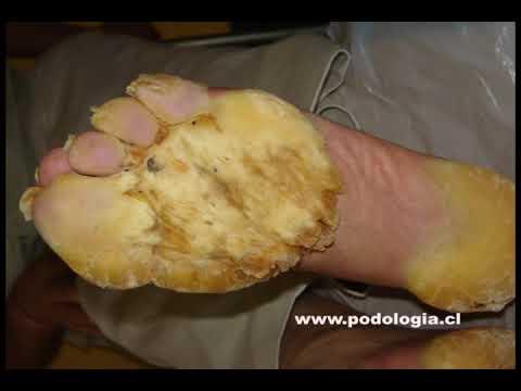 PODOLOGIA  PROFESIONAL (Queratodermia Palmo-Plantar)
