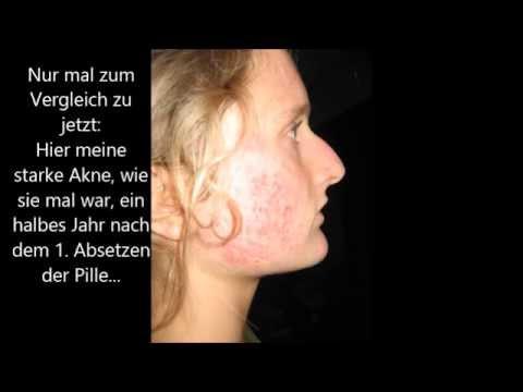 Vorher-Fotos: Meine Akne & mein Haarausfall 2009 & 2013 jeweils nach Absetzen der Pille