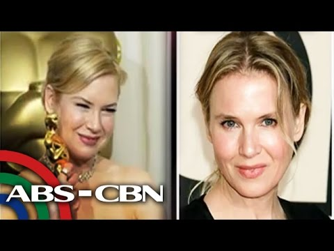 What's behind Renne Zellweger's new look?