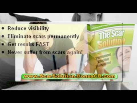 natural acne scar treatment - home remedies for acne scars - best treatment for acne scars