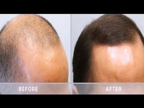 Mens Hair Loss Treatment Minoxidil Arganrain Before
