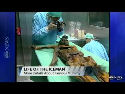 Oetzi the Iceman Mummy in Alps Had Lyme Disease, Lactose Intolerance, Genome Shows   ABC News