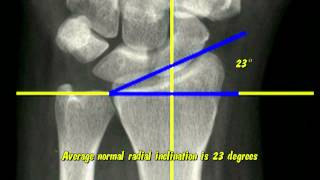 Distal Radius Radiographic Parameters