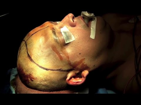 1.HD.BRAIN SURGERY-TUMOR FRONTO ORBITARIO NEUROCIRUGÍA (1 of 4) Music Videos