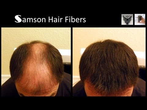 Samson Hair Building Fiber Refills and Electronic Sprayer That  Fits Samson.Toppik™ and Xfusion™