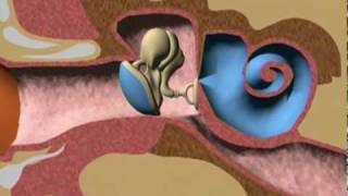 Children And Ear Infections VideoMp4Mp3.Com