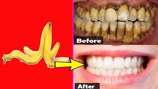 सिर्फ 3 मिनट में दाँतो को मोतियों की तरह सफेद बनाए - How To Have Natural White Teeth in 3 minutes