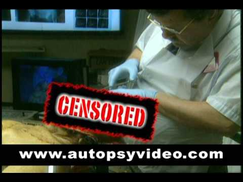 Human Autopsy Dvd - Through The Eyes Of Death's Detectives video