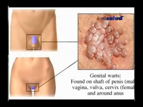 La Vacuna contra  Virus del Papiloma Humano evita el cáncer cuello uterino