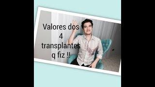 Quanto gastei com meus 4 transplantes capilares FUT/FUE - Brasil/Turquia .