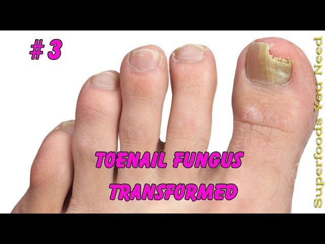 Toenail Fungus Transformed into Pretty nail #3 | Toenail pedicure tutorial - November 2017