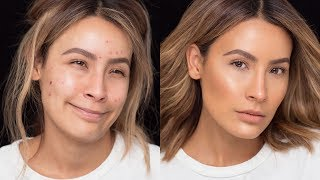 Download FLAWLESS SKIN WITH ACNE BREAKOUTS | DESI PERKINS 3Gp Mp4
