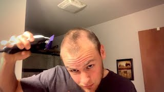 RECEDING HAIRLINE SINCE 17 - Shaving My Head Embracing Going Bald (LIVE) 2