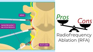 Radiofrequency Ablation - Pros and Cons
