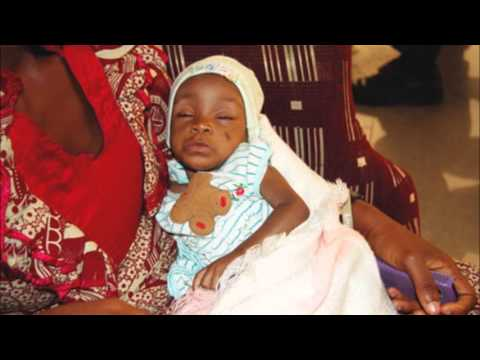 Dear Nigerians 8 Months Old Baby Oluwadara Needs Your Help To Live
