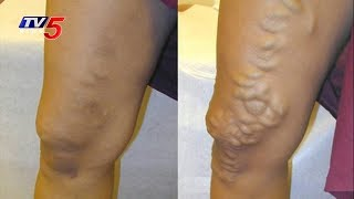 What Is Varicose Veins? And Its Treatment | Sri Visista Hospitals | Health File