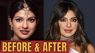 Priyanka Chopra; Plastic (Cosmetic ) Surgery  2020