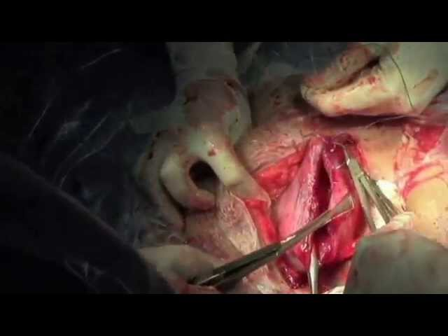 LSCS. Watch a Cesarean section from skin incision to closure.