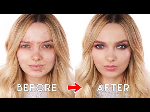 Acne Coverage - Drugstore First Impressions Makeup Tutorial // MyPaleSkin