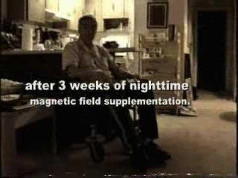 transcranial magnetic stimulation machine cost