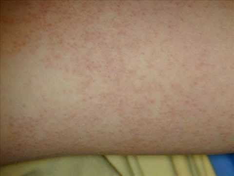 Yeast Rash In Skin Folds Natural Remedy For Eye Infection