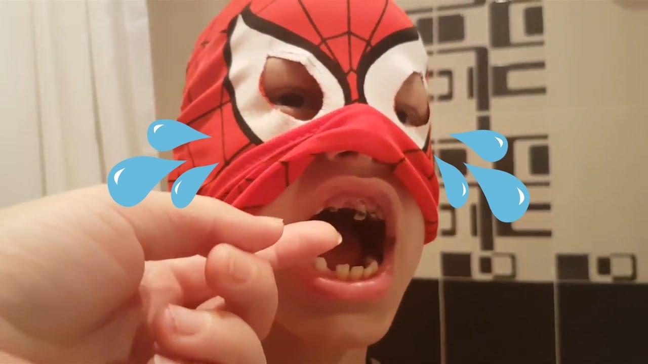 Человеку пауку лечат зубы