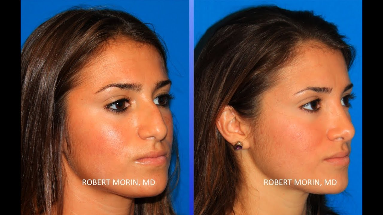 Rhinoplasty NYC Before and After Plastic Surgeon Robert Morin MD ...