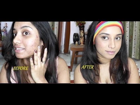 Severe acne coverage foundation routine for Indian skin tone.