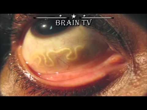 ТОП 10 самых страшных паразитов, которые могут жить в человеческом теле .От BRAIN TV.