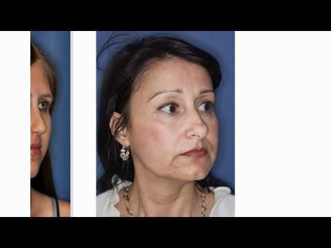 Schönheitschirurgie schönheitsoperationen ansichten 269