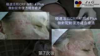 個案511-治療凹凸洞疤痕暗瘡粉刺(CRF MTS 4 Plus(過程及療程前,4,5,7次後改善情況)-Part 2