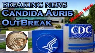 Candida Auris Outbreak update April 04   2019 BREAKING NEWS from the CDC