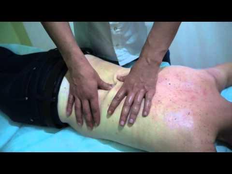Массаж лечение грыж позвоночник 22