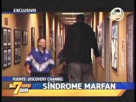 SINDROME DE MARFAN 7MO DIA