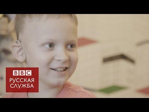 """""""Я слышу"""": как глухих детей возвращают в мир звуков"""