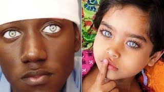 8 Most Beautiful Eyes In The World