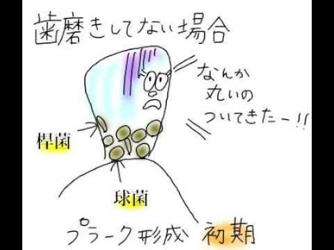 歯の付着物・沈着物〜DHへの道7〜