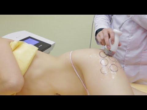 Как избавиться от жировых отложений? Руки, живот, бедра, колени. Говорит ЭКСПЕРТ /Expert Says/