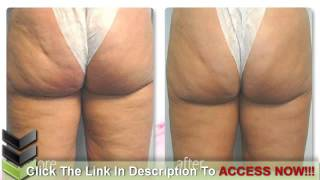 Star With Cellulite - Can A Picture Of A Star With Cellulite Make You Feel Better?