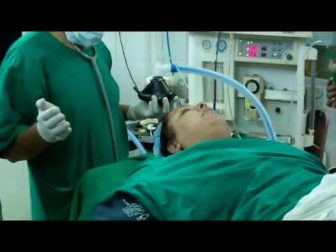 Anesthesia: Extubating an obese snorer after sleep surgery:Dr.K.O.Paulose FRCS