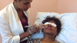 Mole Removal with Dr. Andrea Trowers