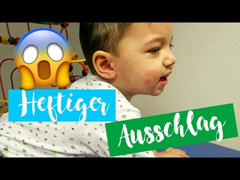 HEFTIGER AUSSCHLAG| Everyday life Familienvlog | Filiz