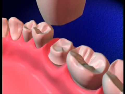 WHY NEED CROWN AFTER ROOT CANAL