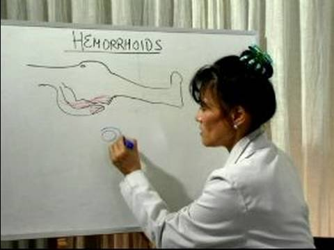 How to Cure Hemorrhoids : What Causes Hemorrhoids?