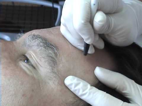skin classic treatment of sebacious hyperplasia 1 utube_0001.wmv