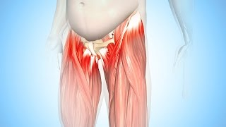 Best Exercises for Hip tendonitis