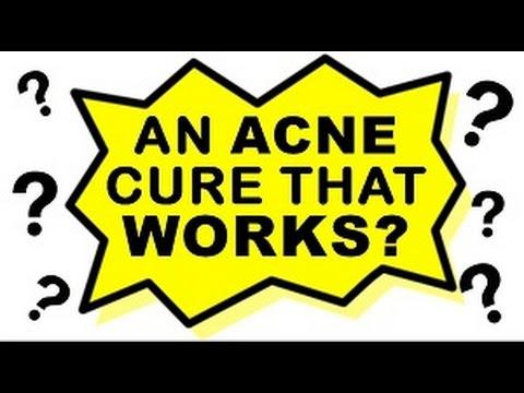 Acne No More Review - NO ACTORS USED! | DISCOUNT!
