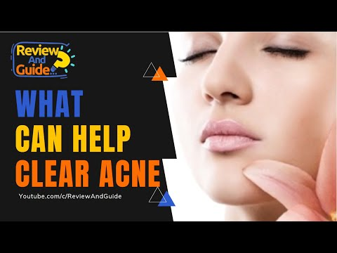 Acne Treatment: What Can Help Clear Acne