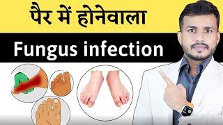 364:पैर में फंगल इंफेक्शन(Athlete's Foot) पर काबू पाने के लिए करे ये उपाय|| Athlete's Foot Ayurveda