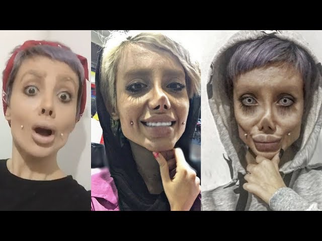 What's Going On With Sahar Tabar's Angelina Jolie Plastic Surgery? | What's Trending Now!